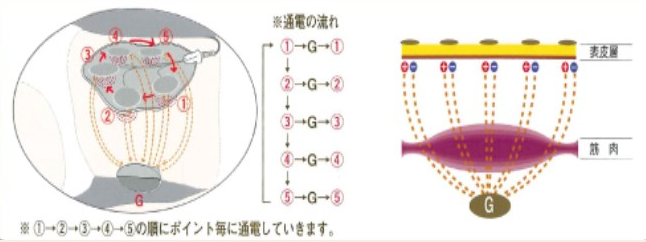 秋田EMS効果
