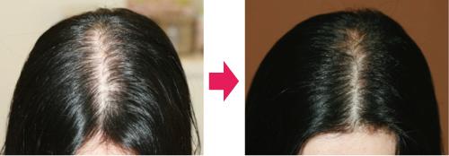 薄毛治療例HARG1